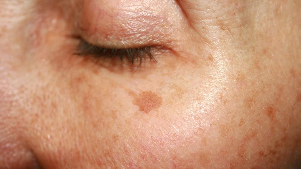 Pigmentfläckar, eller lentigo solaris, beror på en ökad pigmentering i huden.