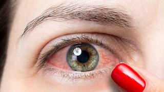 rödsprängda ögon orsak