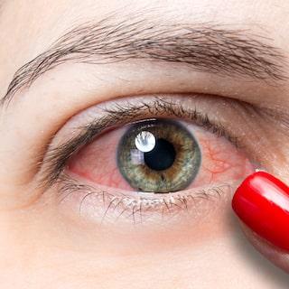få bort röda ögon snabbt