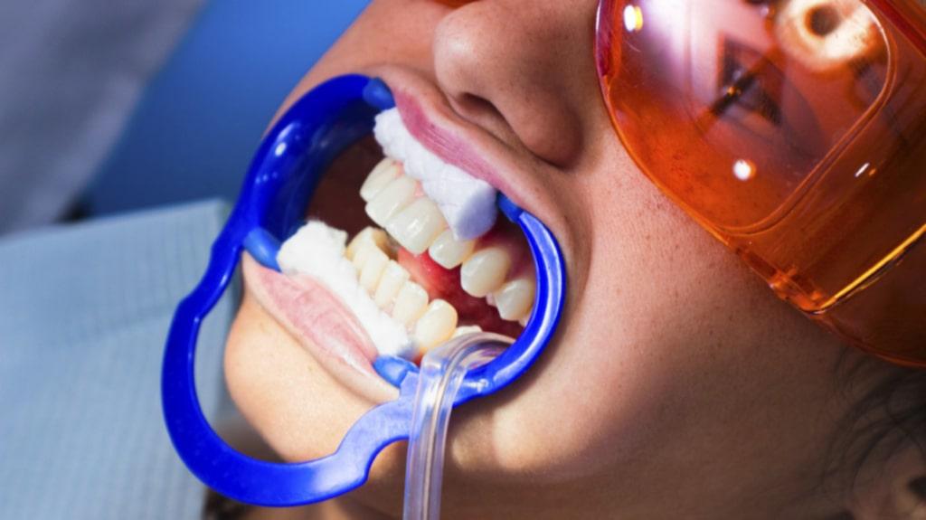 För starka medel kan vara skadliga för mun och tänder varnar flera experter som P3 Nyheter varit i kontakt med.