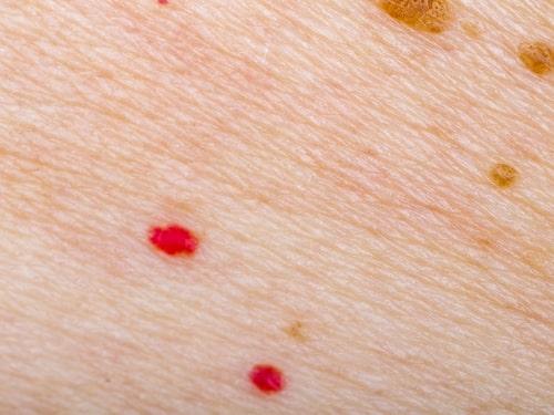 Cherry spots är röda små fläckar på huden. De är ofarliga och lätta att behandla.