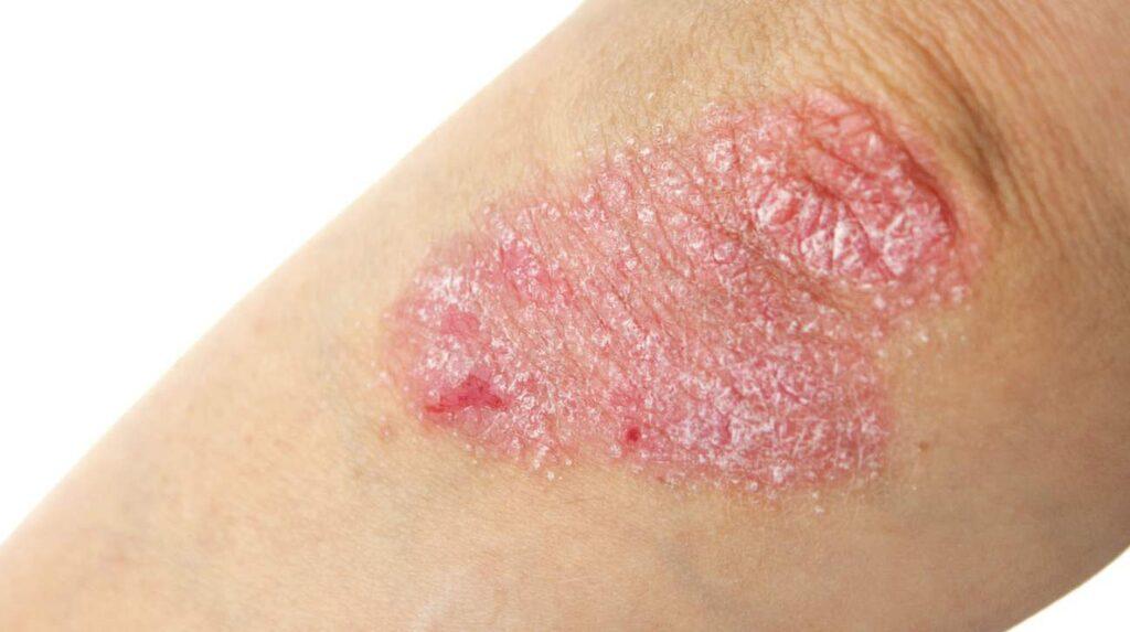 <p>Bild på psoriasis – en obotlig systemsjukdom som bland annat ger symptom på huden.</p>