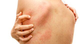 nässelutslag och feber