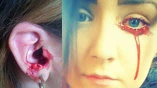 blöda ur örat