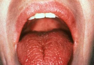 svamp på tungan gravid