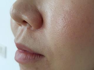 få bort stora porer