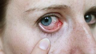 feber och ont i ögonen