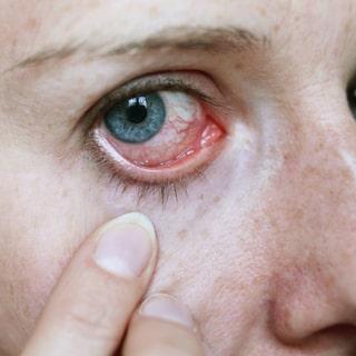 brustet blodkärl i ögat