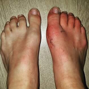 artros i foten operation