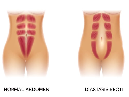 Normal magmuskulatur jämfört med rektusdiastas.