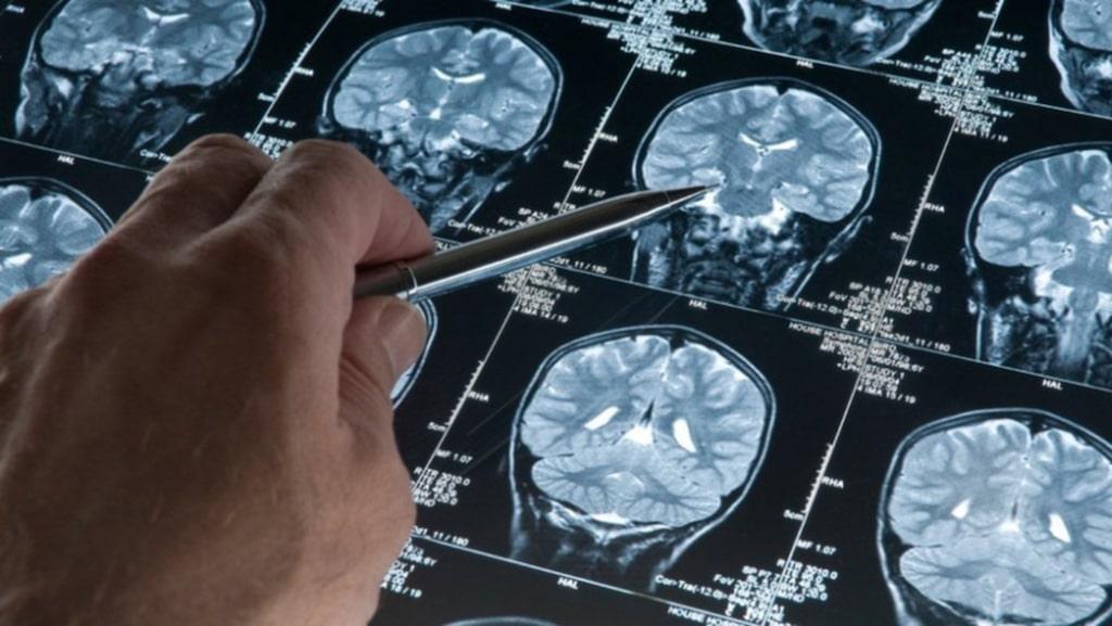 SVENSK STUDIE. Nu hoppas forskarna kunna upptäcka Alzheimer i hjärnan tidigt, och då kunna på påbörja förebyggande behandling.