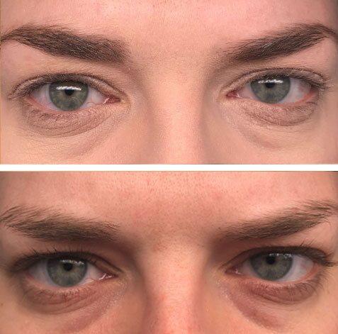 """Före (över) och efter (under) cirka 15 veckors användning: """"Efter cirka 8 veckors användning såg jag resultat av både fylligare och längre fransar. Jag blev imponerad över hur det såg ut med mascara. Nu når de upp till mina brynben!"""""""