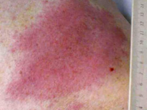 Bett kan ge märken som är svåra att identifiera. Ibland består de av ett stort rött märke - som här.