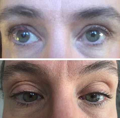 """Före (över) och efter (under) cirka 15 veckors användning av Medik8:s ögonfransserum: """"Liiite mer småfransar och lite tjockare kvalitet men det händer inte mycket med längden på fransarna."""""""