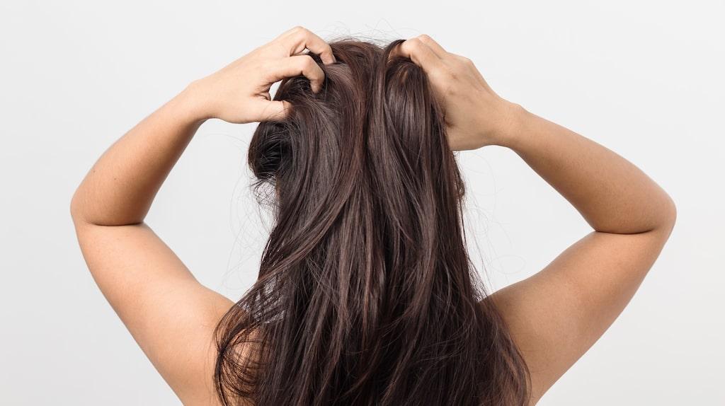 En kliande hårbotten är ett vanligt besvär.