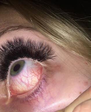 röda ögon efter fransförlängning