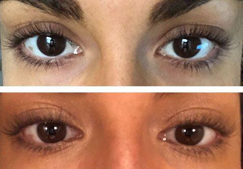 """Före (över) och efter (under) cirka 15 veckors användning av Lashfood ögonfransserum: """"Jag fick känslan ungefär halvvägs igenom att fransarna kändes lite längre och bättre men när jag tittar på foton så ser jag helt ärligt ingen skillnad."""""""